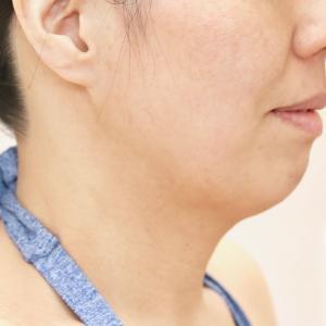 40代は脂肪吸引に適さない年代なのか?