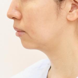 切るフェイスリフト?ホホ+あご下の脂肪吸引?あご下の水かき治療