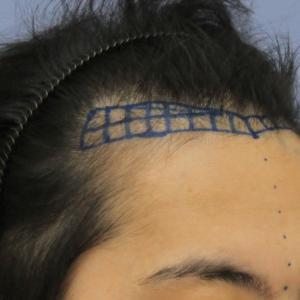 自毛植毛症例