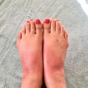【再掲】足の症状とぱなしと自然療法と