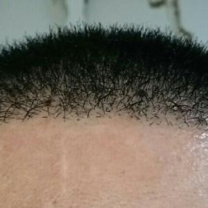 植毛後10ヶ月目