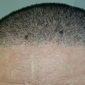 自植毛11ヶ月目