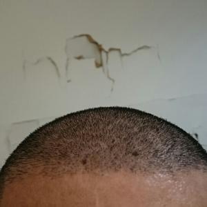 植毛後4ヶ月を過ぎて