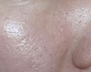 敏感肌・乾燥肌★レチノール配合のシェルシュール マトリックスQの4日目レビューと毛穴写真