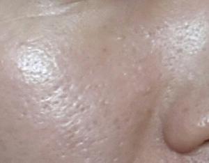 敏感肌・乾燥肌★レチノール配合のシェルシュール マトリックスQの5日目レビューと毛穴