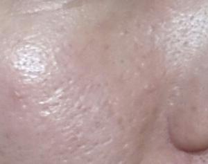 敏感肌・乾燥肌★シェルシュールベビーマトリックスFとマトリックスQの15日目の毛穴写真