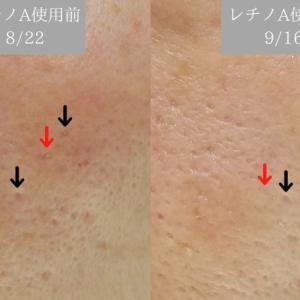 ビフォアフ毛穴写真!キャメロン&ガブリエル天使の聖水とDHCレチノAエッセンスの肌変化!