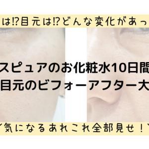 ナールスピュアのお化粧水の詳細と10日間使ったビフォーアフター毛穴写真!