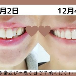 クレストで歯みがき1か月!歯は白くなったのか!?ビフォアフお見せします!