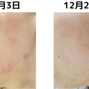 VCスターターセットで荒れた肌を披露!!治した方法もお伝えします!