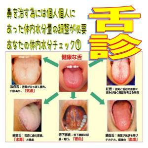 水分過剰になった時に出てくる症状7️⃣舌診