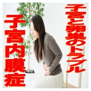 子宮と卵巣トラブル:子宮内膜症