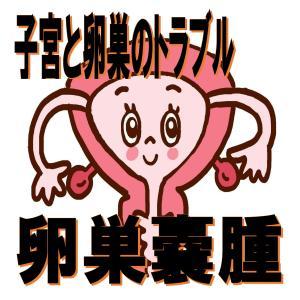 子宮と卵巣トラブル:卵巣嚢腫