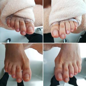 【お客様の足】肥厚爪、巻き爪、足裏のタコ