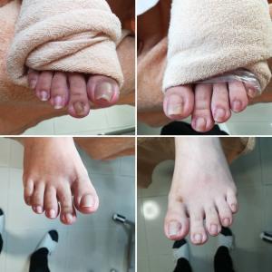 【お客様の足】~1本だけ爪が厚い~