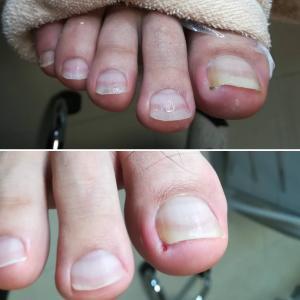 【お客様の足】今までにない拇趾爪の痛み