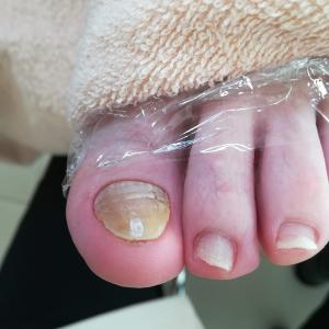 歩くと痛い親指
