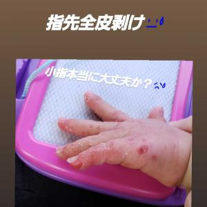 手足口病の経過。