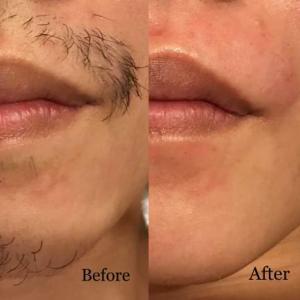 ●男性メンズ髭(ヒゲ)もワックス脱毛可能です!