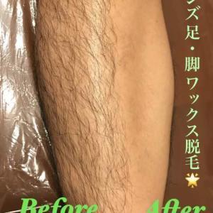 ●ムダ毛をキレイに処理するにはワックス脱毛がおススメ●