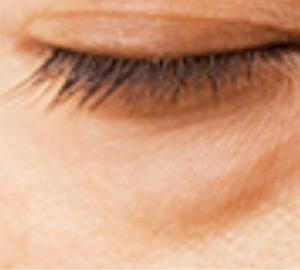 アラフィフお悩みの上位「目の下のタルミ」