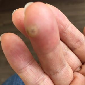 指先にできたイボの治療 皮膚科に行ってきました