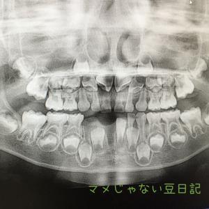 5歳児の抜けた永久歯を元に戻す