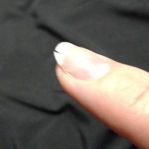 爪が割れた