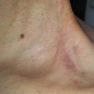 首の手術痕