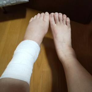 アキレス腱縫合術後22日目 再診&リハビリ