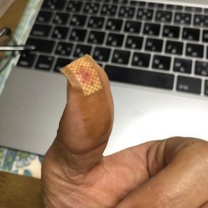 包丁で指を・・・
