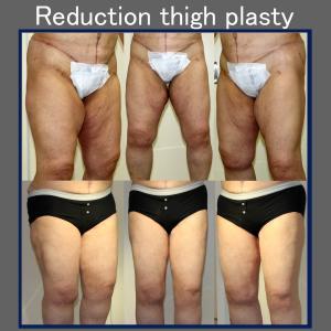 大腿部余剰皮膚切除術(術後5ヶ月)