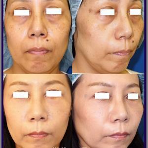 下眼瞼除皺術+脂肪移植(術後1か月)