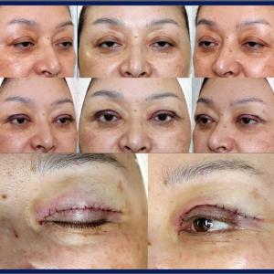 眼瞼下垂症手術(短冊状挙筋腱膜弁法)