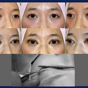 全切開法(挙筋前転術:短冊状挙筋腱膜弁法)+目頭切開