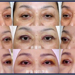眼瞼下垂症手術(短冊状挙筋腱膜弁法)経過