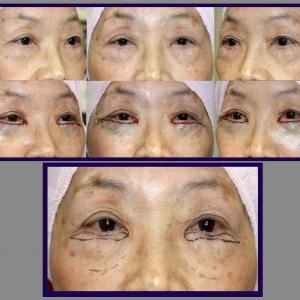 下眼瞼除皺術(両側端膨隆状切除法)