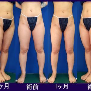 大腿、腰部、膝周り脂肪吸引:術後1ヶ月