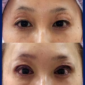 上眼瞼移植脂肪除去+眼瞼下垂症手術(短冊状挙筋腱膜弁法)
