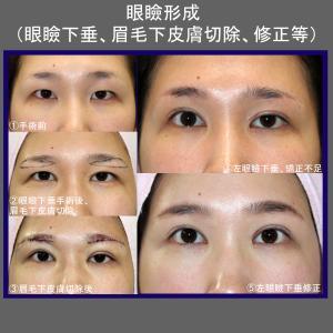 眼瞼形成術(眼瞼下垂+ROOF切除+目頭切開+眉毛下皮膚切除+修正)