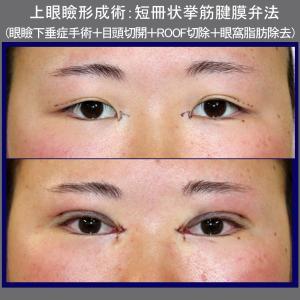 上眼瞼形成術:短冊状挙筋腱膜弁法