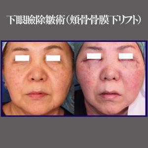 下眼瞼除皺術(頬骨骨膜下リフト)+頬部脂肪吸引