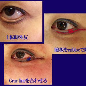 下眼瞼外反修正