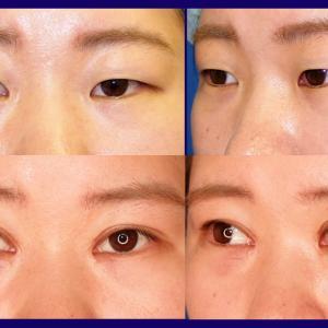 上眼瞼形成術(短冊状挙筋腱膜弁法、目頭切開)、術後2か月