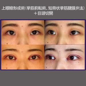 上眼瞼形成術(挙筋前転術、短冊状挙筋腱膜弁法)+目頭切開
