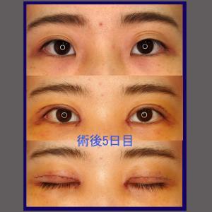 上眼瞼形成術(挙筋前転術、短冊状挙筋腱膜弁法)+目頭切開、術後5日目