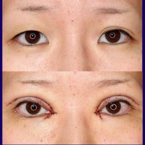 上眼瞼形成術(挙筋前転術、短冊状挙筋腱膜弁法)+目頭切開+ROOF除去