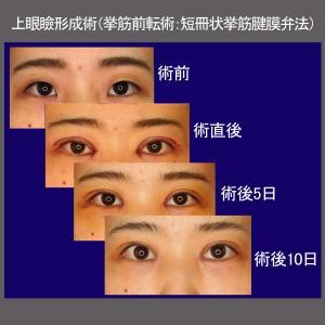 上眼瞼形成術(挙筋前転術:短冊状挙筋腱膜弁法)、経過