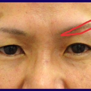 眉毛下皮膚切除術(術後5か月)