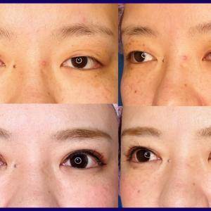 上眼瞼形成術(短冊状挙筋腱膜弁法)+眼瞼下垂症手術+ROOF除去+眼窩脂肪除去、術後2ヶ月